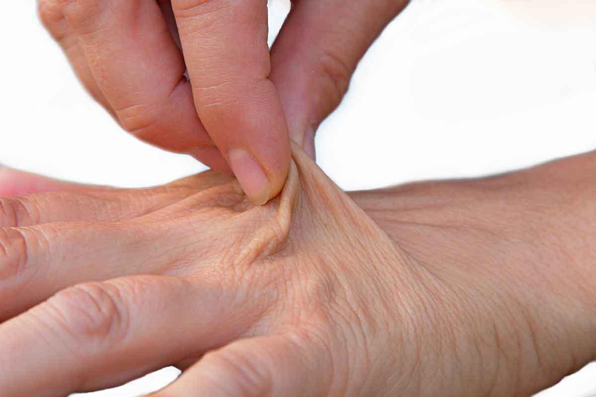 elastic-skin-dehydration